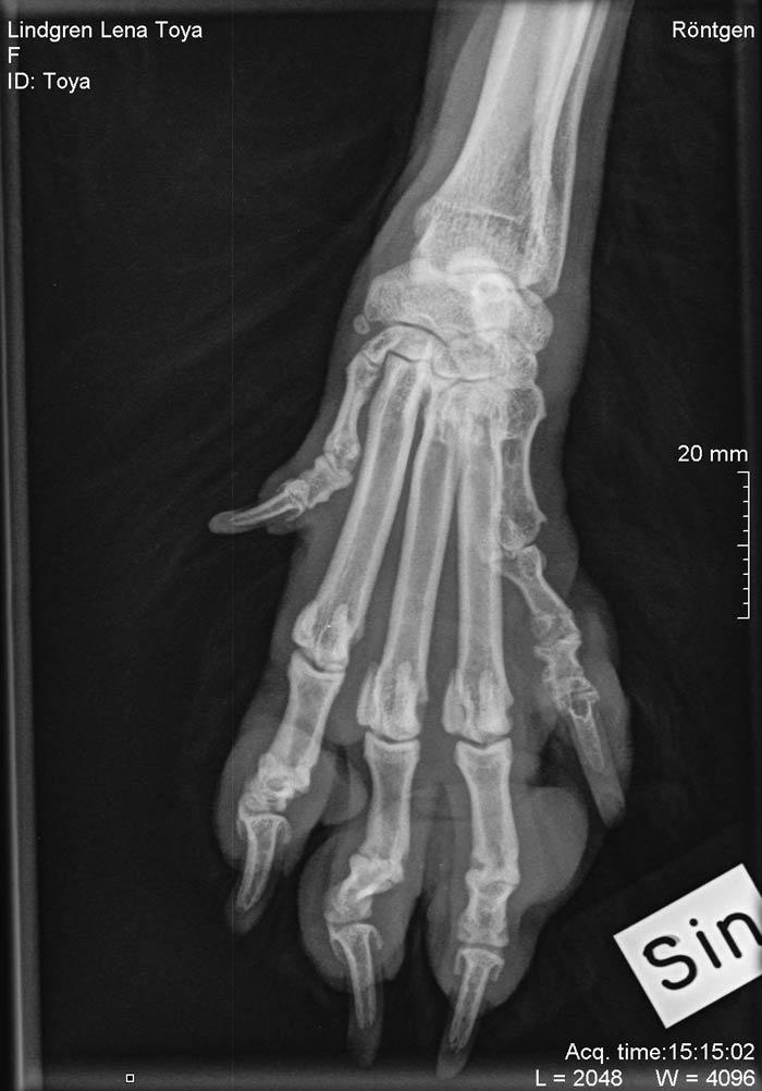 Toyas röntgen av foten
